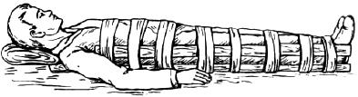 Оказание первой помощи при повреждении позвоночника и таза
