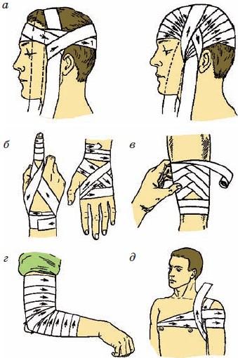правила наложения повязок фото мужчина должен